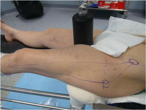 Tecniche di protesi dell'anca - 2
