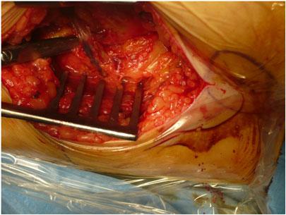 Protesi all'anca - operazione chirurgica