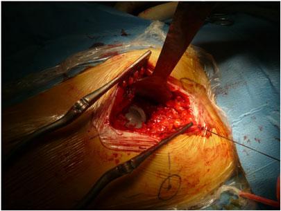 Protesi all'anca - operazione