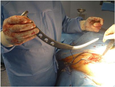 Preparazione del femore: operazione di protesi d'anca