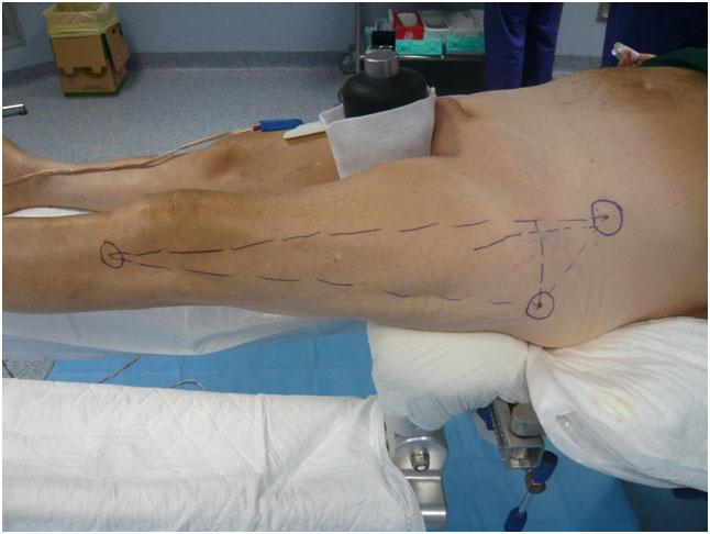 Protesi dell'anca - Incisione cutanea