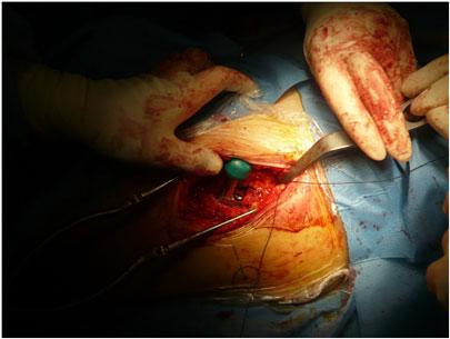 Protesi all'anca, operazione chirurgica