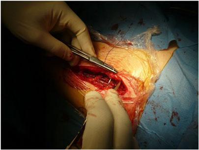 Intervento di protesi d'anca - Sutura