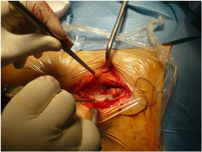 Dissezione profonda in operazione di protesi anca