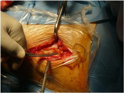 Protesi all'anca - dissezione profonda